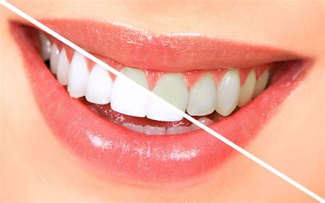 Teeth Whitening - Guide To a Beautiful Smile - DentalsReview