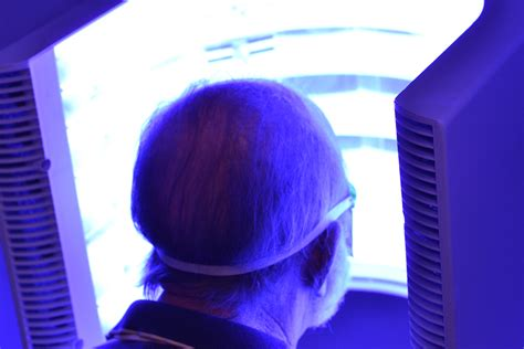 blue light treatment how does photodynamic therapy treat actinic keratosis