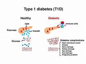 A Bacteria In The Gut May Predict Type 1 Diabetes