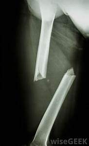 What is a Transverse Fracture? (with pictures)