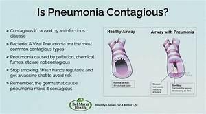 Is Pneumonia Contagious  Types And Symptoms Of Pneumonia