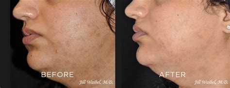 post inflammatory hyperpigmentation treatment  miami fl