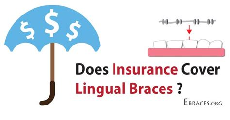 Dental braces are something that are opted by an individual as per their wish. Lingual Braces Will Help Realign and Straighten Your Teeth
