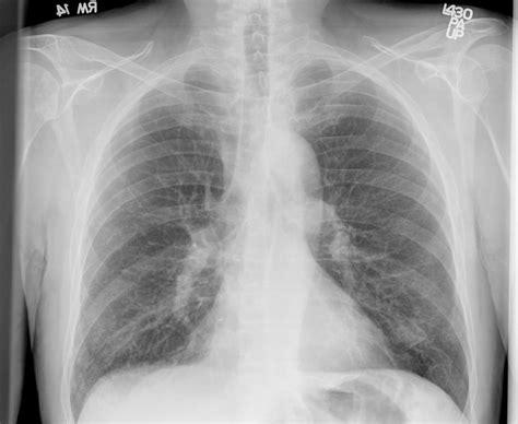 hot tub after breast biopsy pulmonary roundtable may 2006