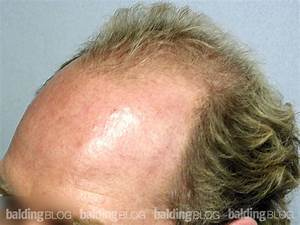 Balding Blog Photos Archives Page 14 Of 22 WRassman