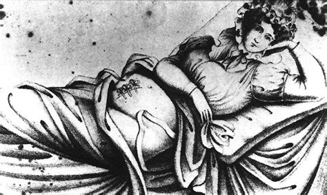 History Of The Cesarean Section