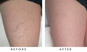 What is the Best Way to Treat Spider Veins? - Dr. Shel ...