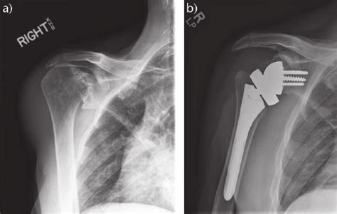 A) Anteroposterior (ap) Radiograph Of A Shoulder With