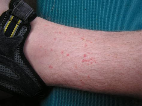 Chiggers In Bed by Flea Bites In Foot