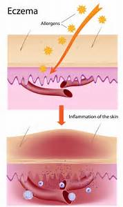 Dyshidrotic eczema as related to Weight Loss and Dieting