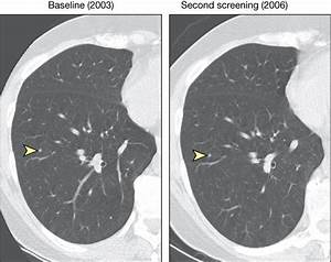 Computed Tomography Screening for Lung Cancer | Cancer ...
