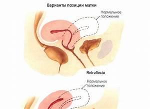 Может ли от шейного остеохондроза болеть ухо