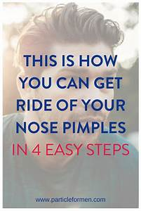 How To Get Rid Of Nose Pimples In 4 Easy Steps