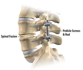 spinal stabilization surgery
