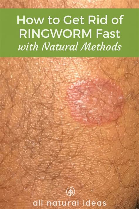 how do u get rid of worms how to get rid of ringworm fast with natural methods all natural ideas