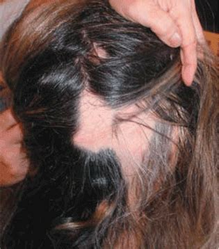 Sudden hair loss associated with trachyonychia   Cleveland