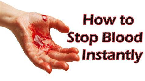 Bleeding  How To Stop Bleeding  Fast And Effective Home