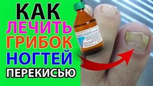 Перекись водорода для лечения папиллом