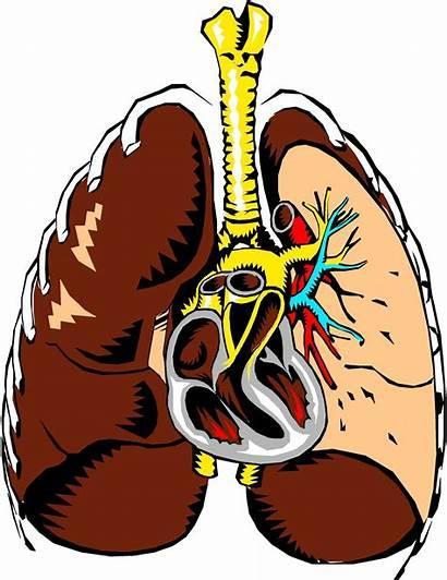 Clipart Lungs Section Cross Vector Pneumonia Lung