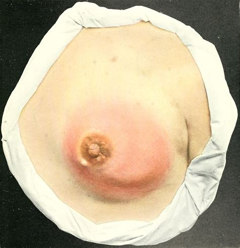 Mastitis Wikipedia