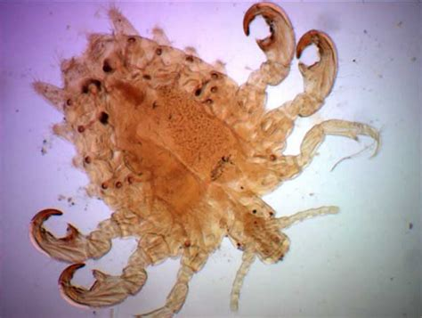 Pubic lice or crab lice signs, symptoms, transmission ...