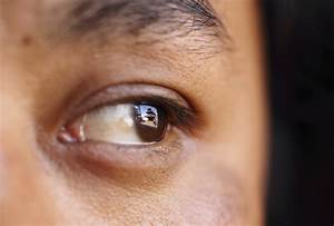 What Is Ocular Melanoma  Doctors Find Extremely Rare Eye