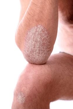 real cure  psoriasis manna health