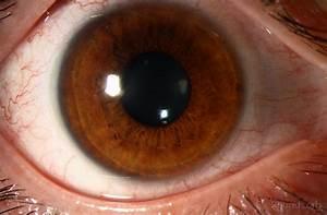 Soft Contact Lens