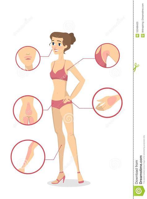 female depilation zones stock vector illustration