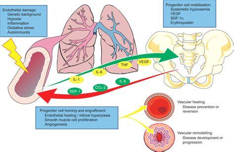 endothelial progenitors  pulmonary hypertension