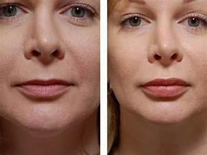 Маски от морщин и для упругости кожи