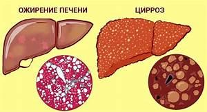 Что такое тодикамп лекарство от цирроза печени