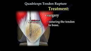 Quadriceps Tendon Rupture