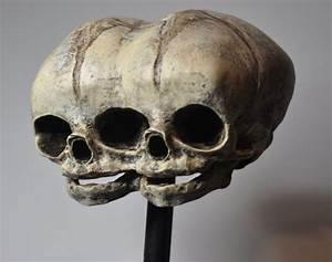 Conjoined Twins Fetal Skull Statue On Storenvy