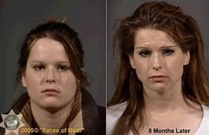 Faces of Meth: the long-term effects of crystal meth or ...