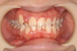 歯槽 膿 漏 治療
