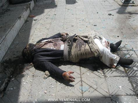 Yemen Rights Monitor June 7th Dead Bodies In Hasaba Sanaa