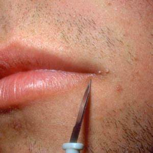 thand332: The Way To Remove Male Penile Warts