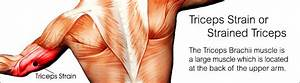 What Is Triceps Strain