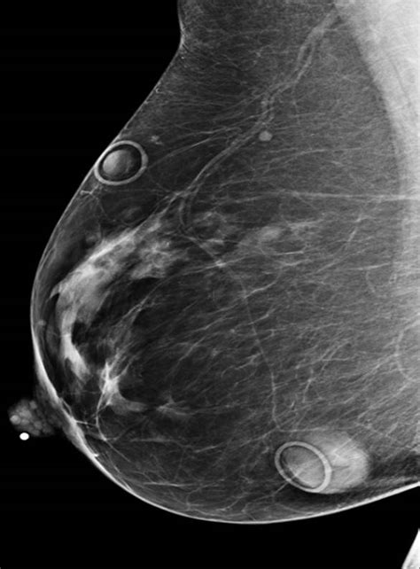 image iq  year   multiple moles screening
