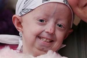 Hayley Okines brave teenager passes away | Australian ...