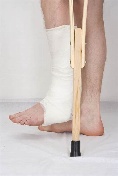 Surgery Foot Ankle Recovery Broken Leg Triad