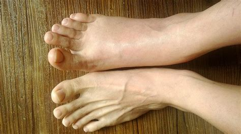 alarming medical conditions   lead  puffy feet