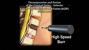 Cervical Spine  Decompression And Fusion