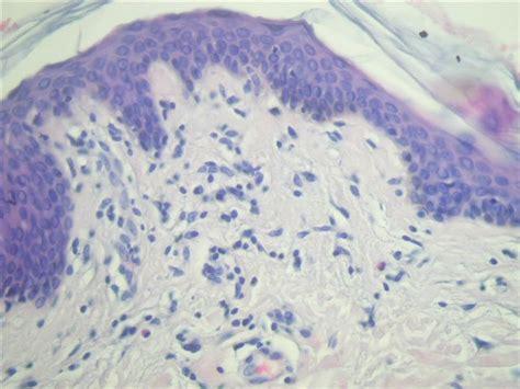 pathology outlines gyrate erythema