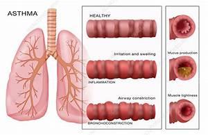 Bronchoconstriction  Asthma  Illustration