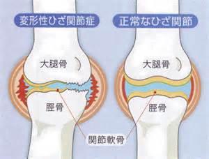 膝関節 に対する画像結果