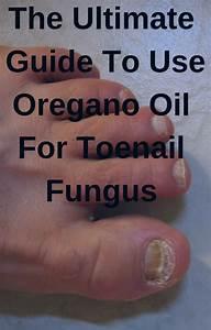 The Ultimate Guide To Use Oregano Oil For Toenail Fungus