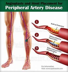 Treatment For Peripheral Artery Disease