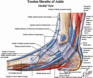 Posterior Tibial Tendon Insufficiency  Ptti